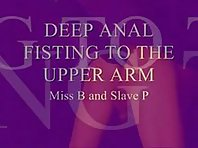 Extreme Deep Anal Fisting